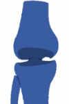 necrosis avascular de rodilla