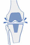 prótesis de rodilla dolorosa