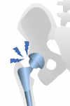 revisión de prótesis de cadera por aflojamiento de prótesis