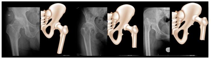 Prótesis de cadera, que es la Displasia de cadera del adulto