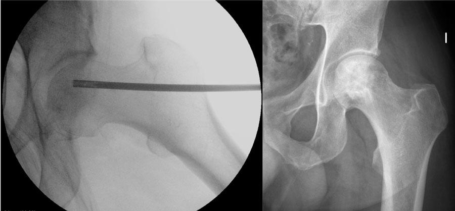 Imagen intraoperatoria de una descompresión cabeza femoral y posterior introducción concentrado células madre. Control radiográfico a los 6 meses