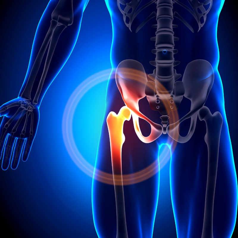 Especialista en prótesis de cadera en pacientes jóvenes o adultos jóvenes