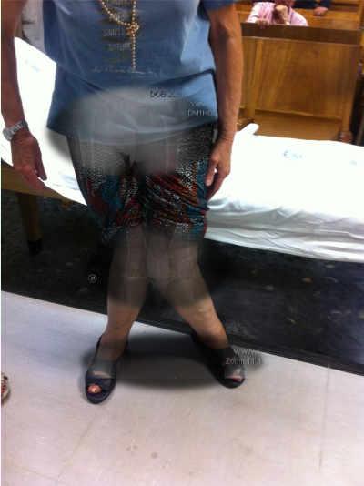 Pacientes con artritis reumatoide con coxartrosis severa izquierda, genu valgo bilateral y pie plano bilateral.