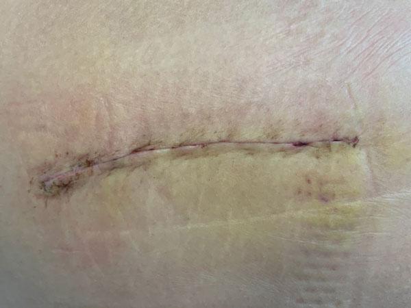 Dr. Pablo Sanz, experto en cirugía e infecciones de prótesis de cadera y rodilla