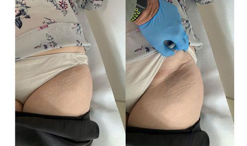 Aspecto de la herida quirúrgica a las 2 semanas de la implantación de una prótesis de cadera