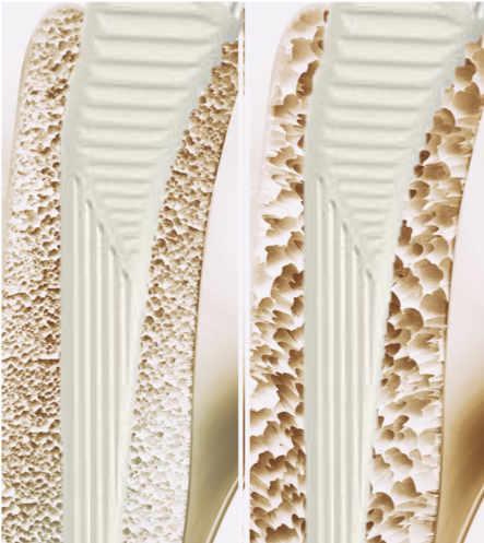 Diferencias entre la fijación de un vástago en un hueso normal y en otro osteoporótico