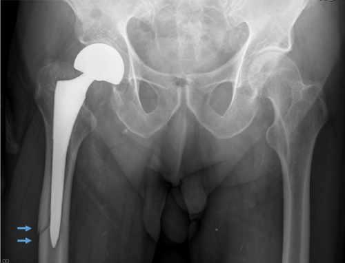 xiste casos donde claramente la prótesis se encuentra aflojada por lo que la única opción real es cambiar el componte aflojado por un nuevo componente que se fije nuevamente al  hueso sano.
