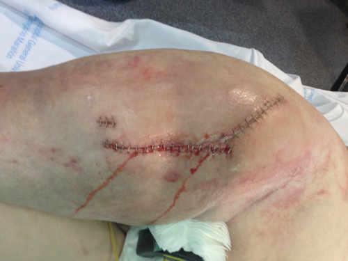 Paciente con infección intervenida de prótesis de cadera tras fracaso tratamiento fractura previa. Obsérvese la cantidad de exudado anormal a partir del 5º día postquirúrgico.
