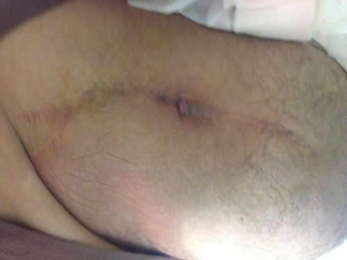 Fistula sobre incisión previa que confirma la presencia de una infección crónica de cadera