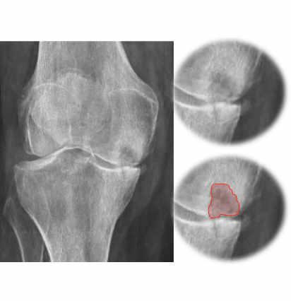 Necrosis avascular de rodilla severa de cóndilo femoral interno