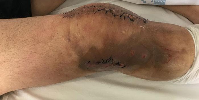 infección de prótesis de rodilla