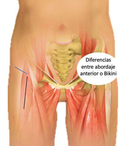 tipos de abordajes quirúrgicos en cirugía de prótesis de cadera
