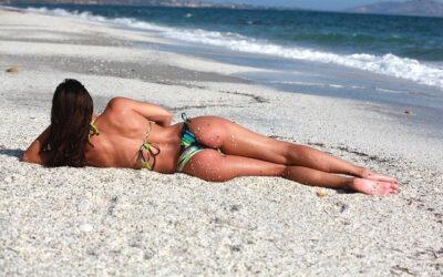 Prótesis de cadera por abordaje quirúrgico tipo bikini