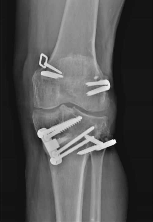 Artrosis compartimental de rodilla tras reparación multiligamentosa