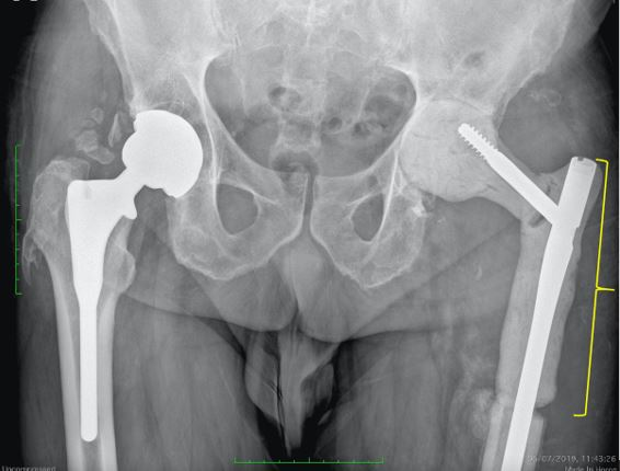 Espaciador masivo cadera izquierda. Fíjese el importante defecto óseo que tuvo que ser sustituido por el espaciador