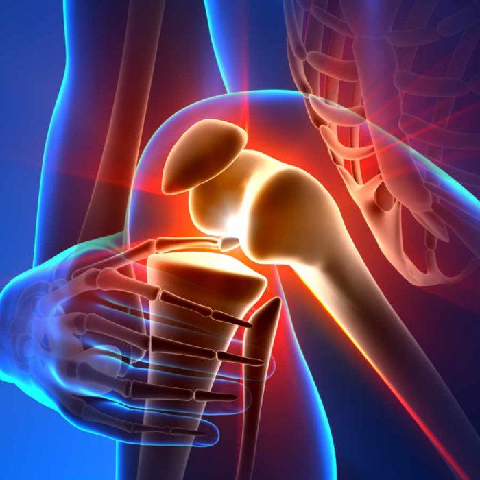 Prótesis de rodilla. Cuando es el momento de poner una