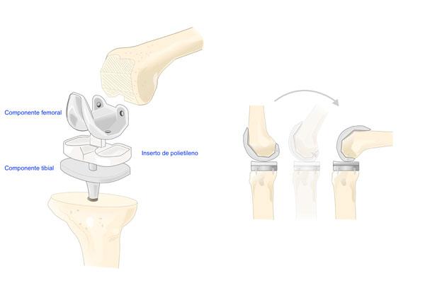 imagen de los componentes de una prótesis de rodilla