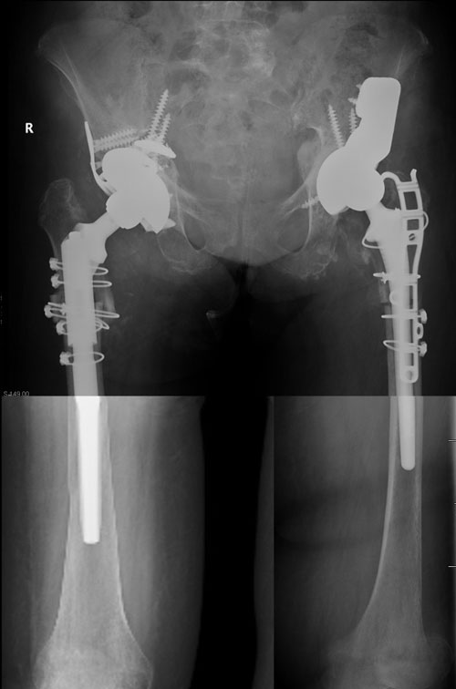 Necrosis y Osteonecrosis de Cadera y Pelvis