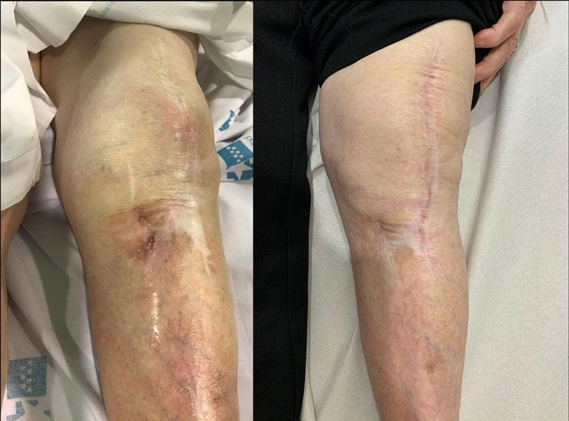 Infección prótesis de rodilla con fistula asociada (IZQUIERDA). Es fácil en este caso que el paciente piense que su cuerpo esta rechazando la prótesis.